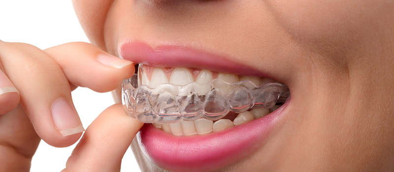 10% off on Invisalign - Metro Dental